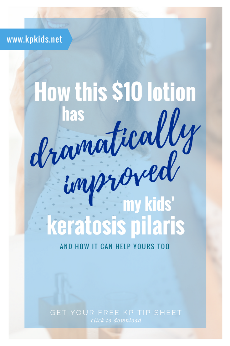 How this $10 Lotion Dramatically Improved my Kids' Keratosis Pilaris | KPKids.net
